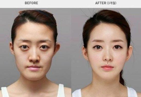 south korea plastic surgery